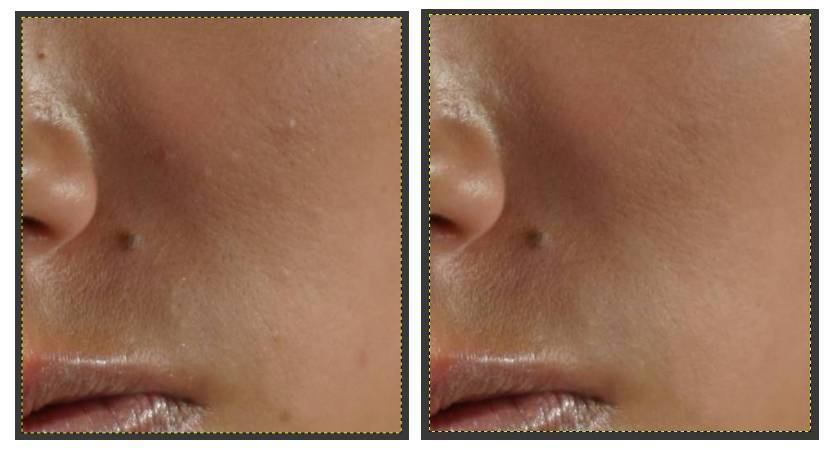 Removing facial blemishes